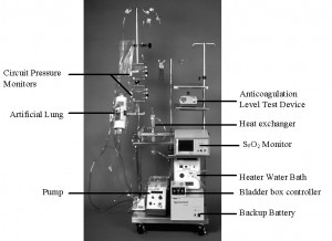 what is an ecmo baby